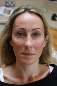 After dermal Filler procedure with Juvederm